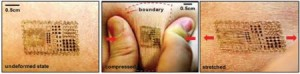 医疗辅助功能的电子皮肤
